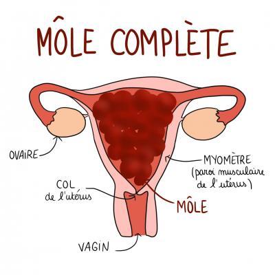 Mole complete