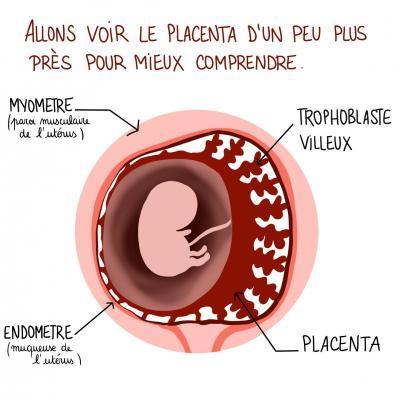 Tumeur 2